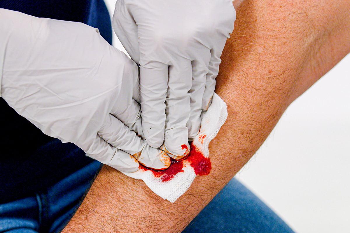 avert-bleeding-control-1200x800-bleed-proper-pressure